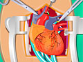 Операция по замене сердца