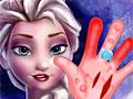 Операция на руке Эльзы