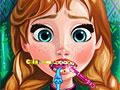 Холодное сердце: Травмы зубов Анны